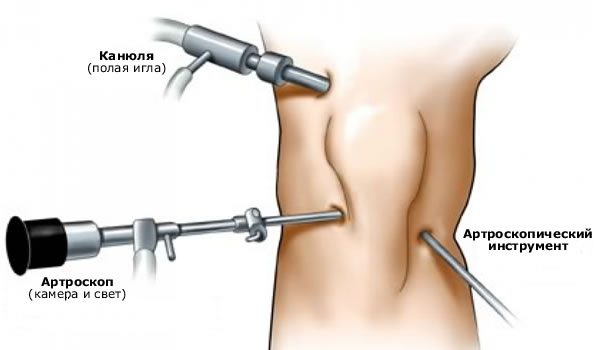 Операция на плечевом суставе пермь